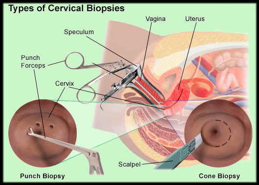 cervicalbiopsies